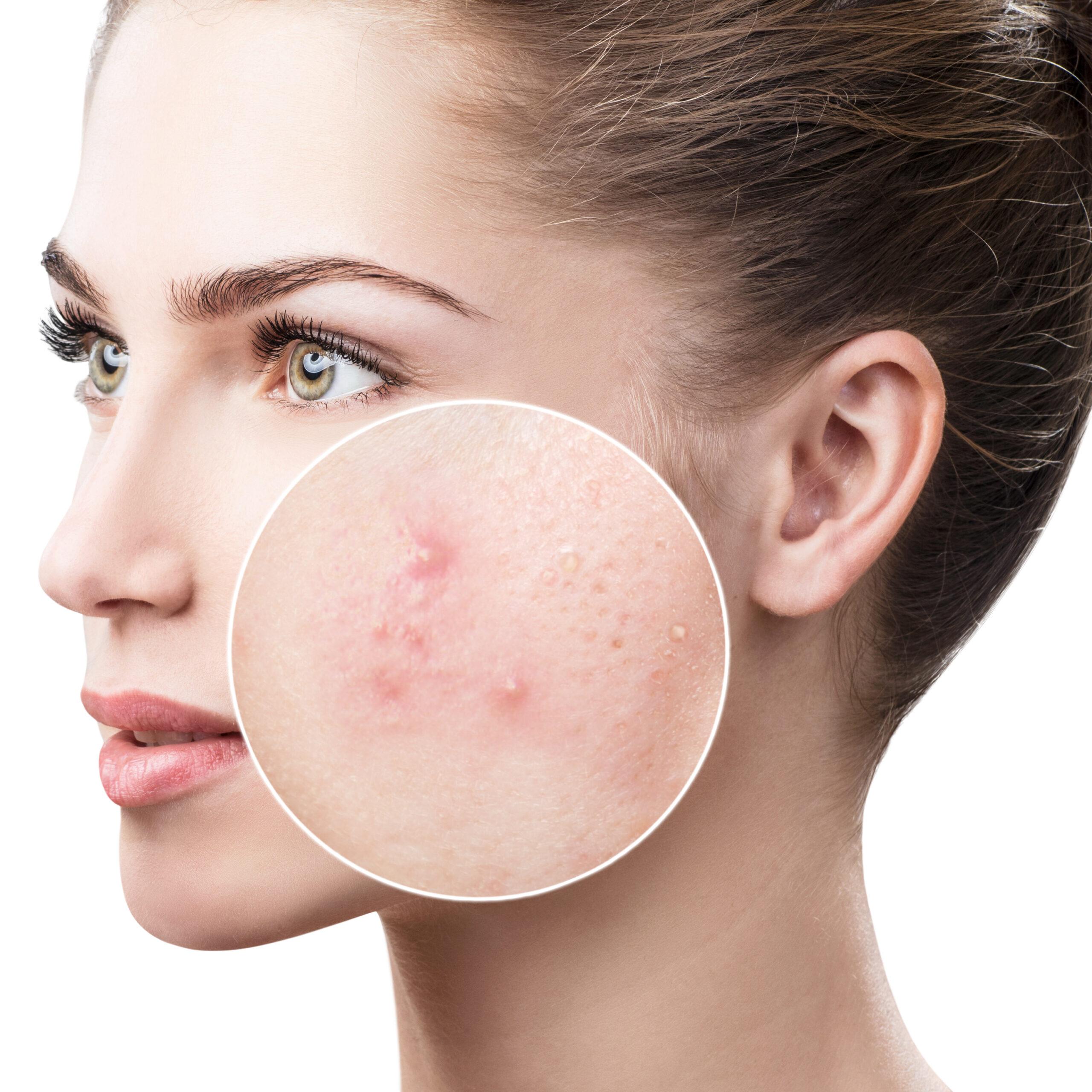 痛い赤ニキビの効果的な治し方とは?ニキビのないキレイな肌を目指そう-1