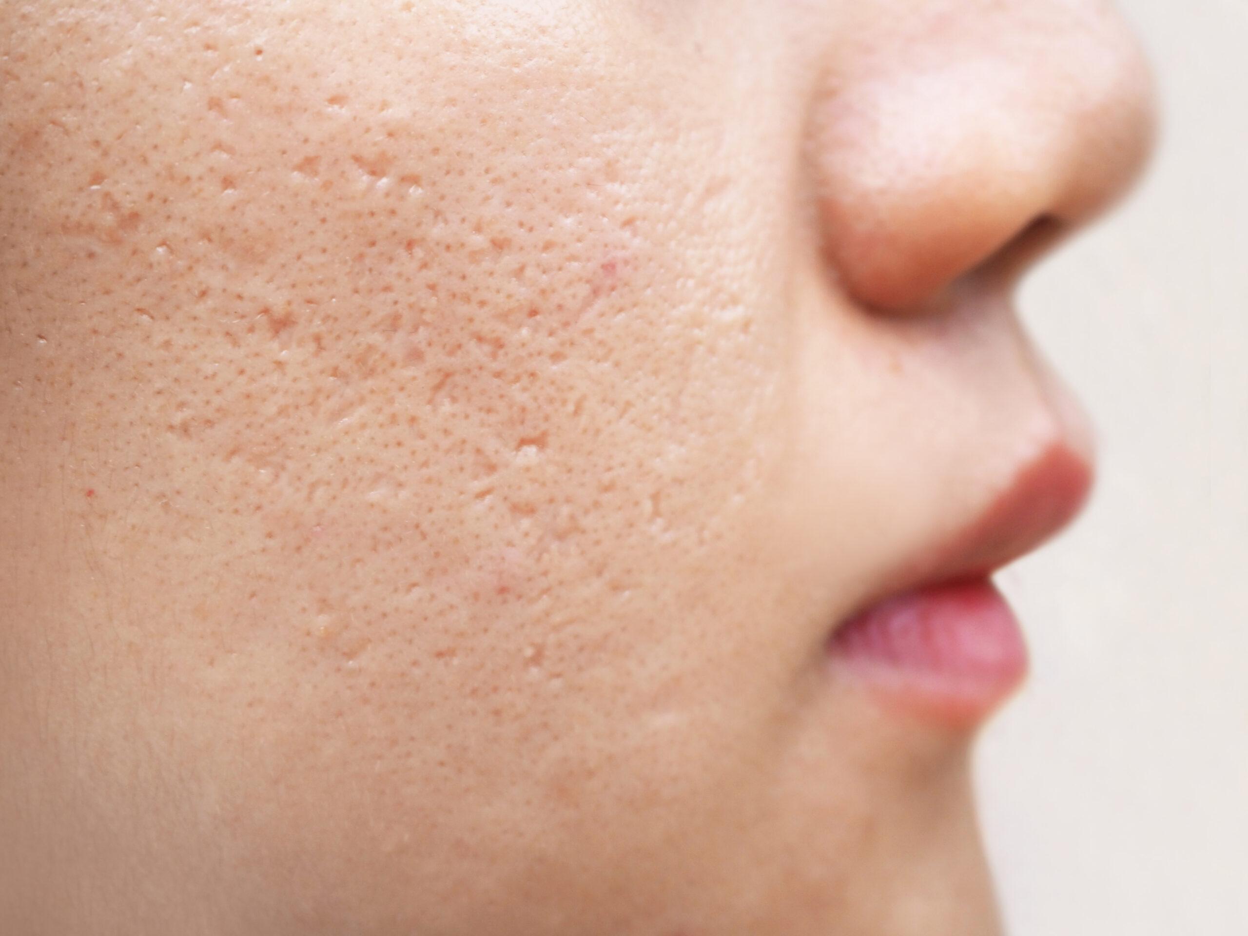 白ニキビができる原因は3つ!気になる口周りの白ニキビの治し方-1