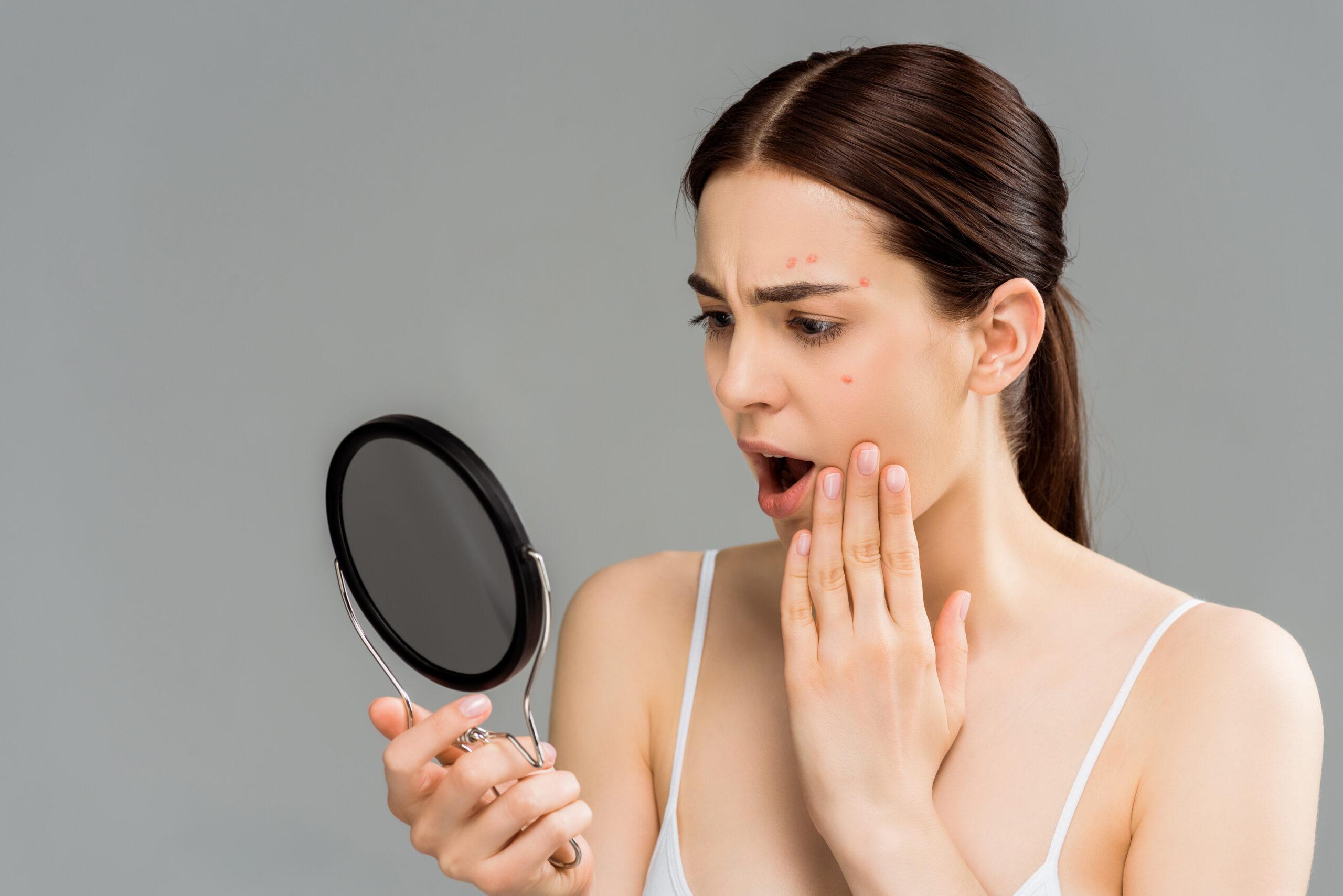 白ニキビができる原因は3つ!気になる口周りの白ニキビの治し方-2