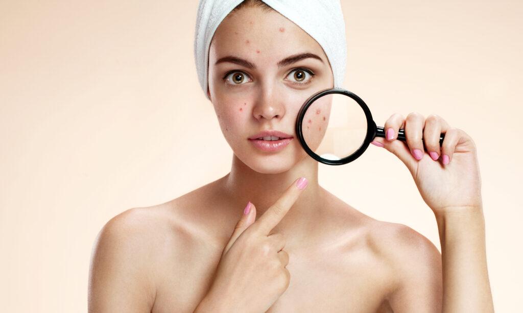 痛い赤ニキビの効果的な治し方とは?ニキビのないキレイな肌を目指そう-2