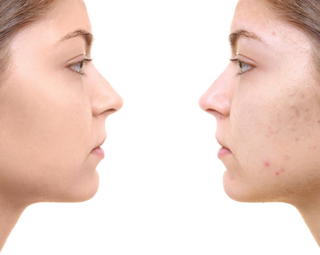痛い赤ニキビの効果的な治し方とは?ニキビのないキレイな肌を目指そう-3